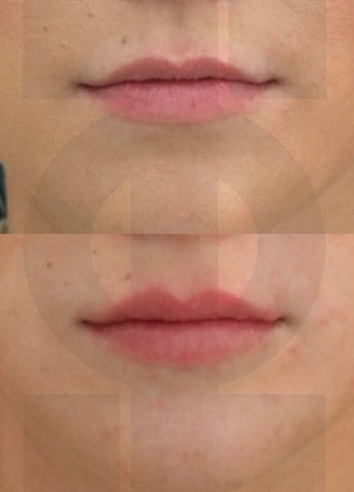Lip Augmentation With Dermal Fillers | PHI Clinic London