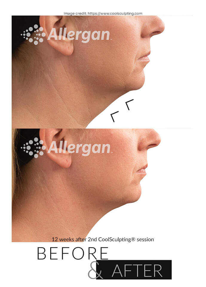 Get Rid of Neck Fat With CoolSculpting - get rid of neck fat london phi clinic 690x960 1