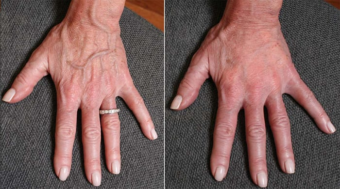 old-hands-rejuvenation-with-fillers-before-and-after