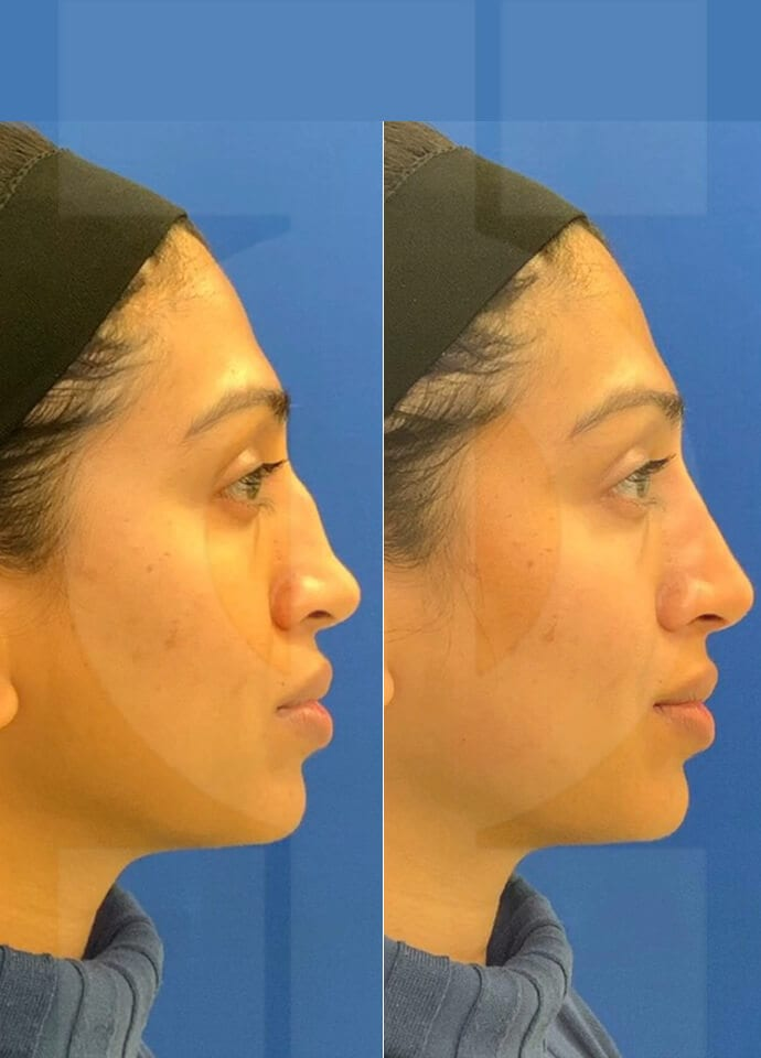 non surgical nose job - hump on nose dermal filler london 690x960