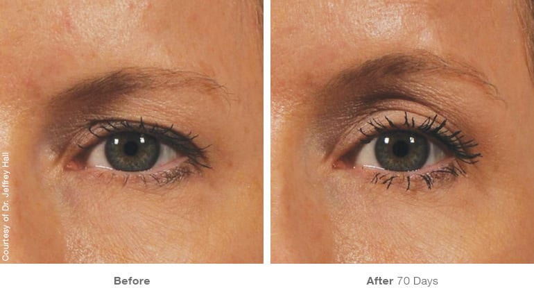 Botox Consultation - img_template_beforeafter_brow12