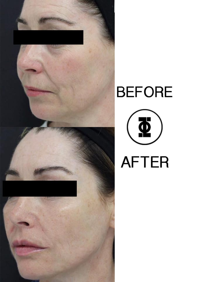 How do you get rid of jowls without surgery?  - jawline slimming phi clinic