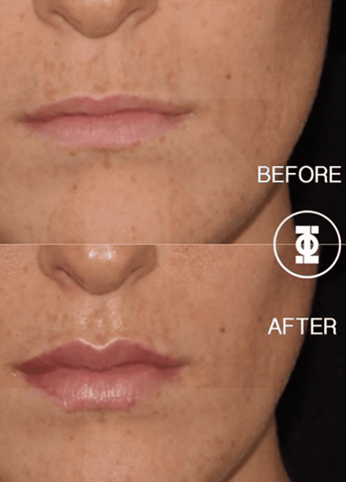 Juvederm Lip Fillers Are Temporary - lip filler results before after
