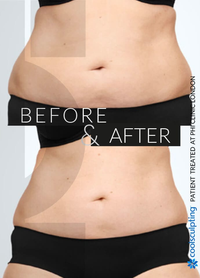 Is CoolSculpting Suitable For Me?  - love handles result phi clinic london 690x960 2 690x960