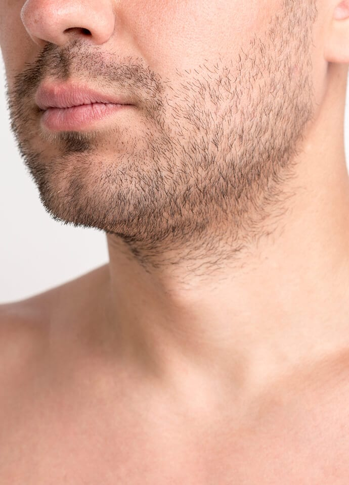 Male Chin Fillers Testimonial - male chin fillers phi clinic london 690x960