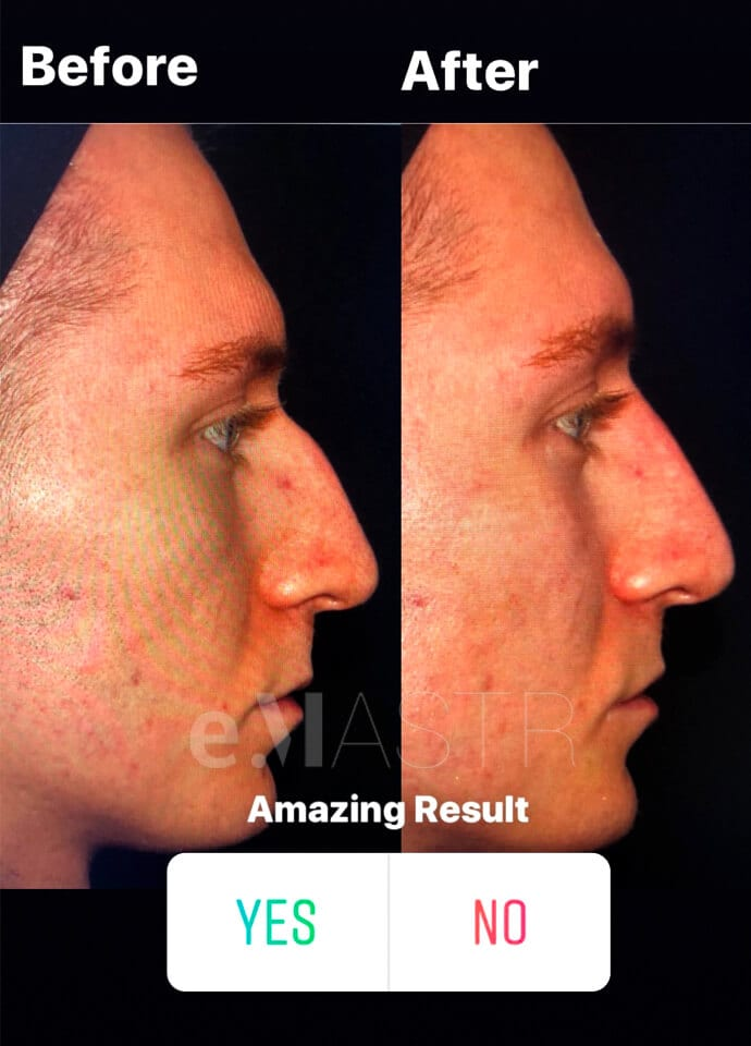 Factors to consider - male dermal filler results 690x960