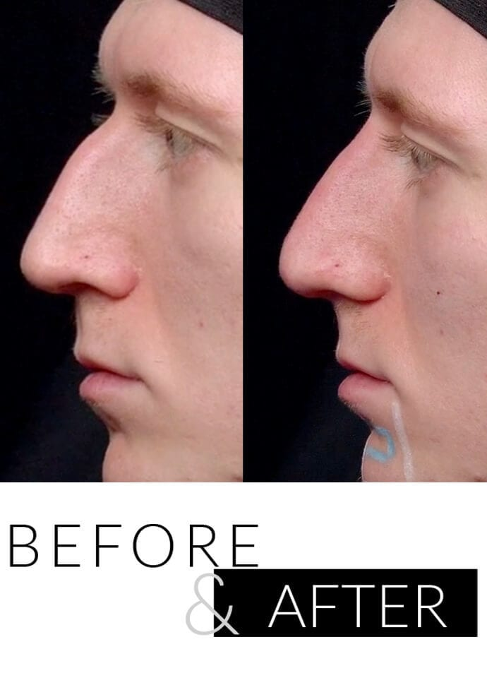 Who will treat me for a bump on the nose? - male nose filler london clinic 690x960 1 690x960