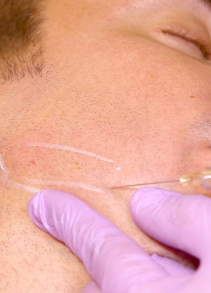Non-Surgical Treatment For A Defined Jawline  - men jawline treatment london 690x960 1 690x960