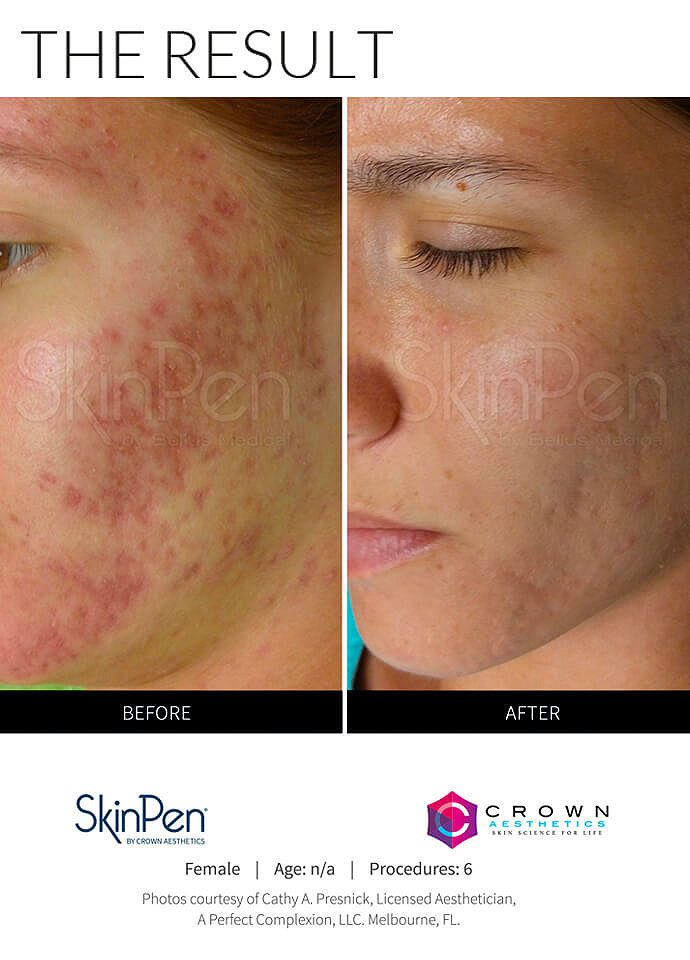 Technical Information - microneedling treatment result 690x960 1 690x960
