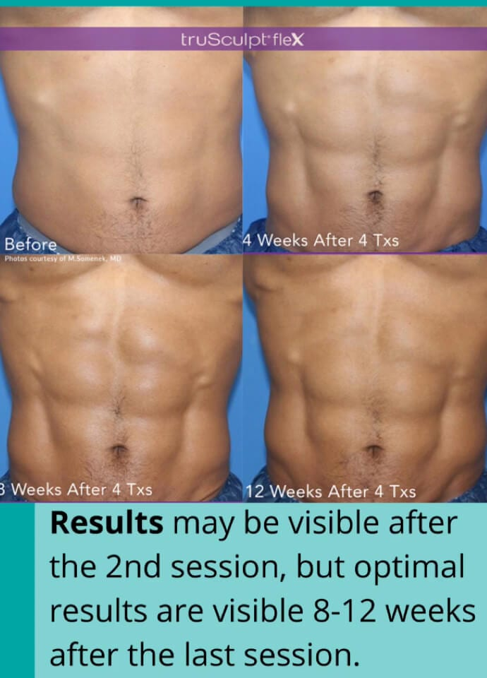 The Added Benefits of Muscle Sculpting Treatment - muscle sculpting treatment 690x960 1