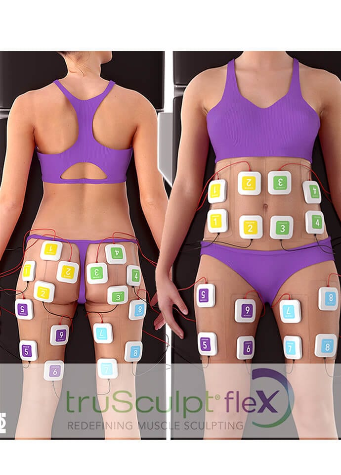 How Long Does truSculpt Flex Muscle Treatment Take? - muscle toning treatment phi clinic london 690x960 1