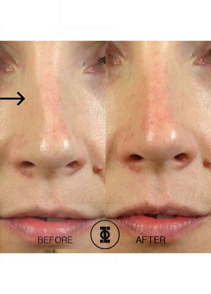 Do Nose Shapers Actually Work?  - needle nose job london 690x960