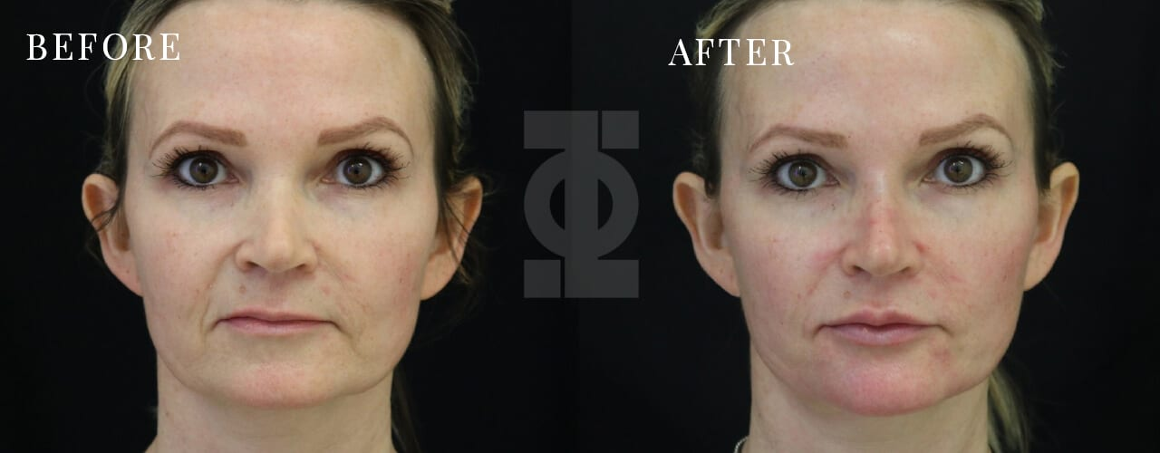 Non Surgical Facelift | Dermal Fillers | PHI Clinic | London