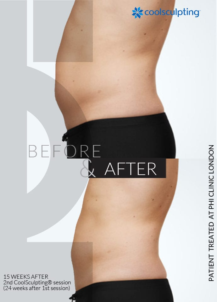Non-surgical lip - non surgical fat reduction before after 690x960 1 690x960