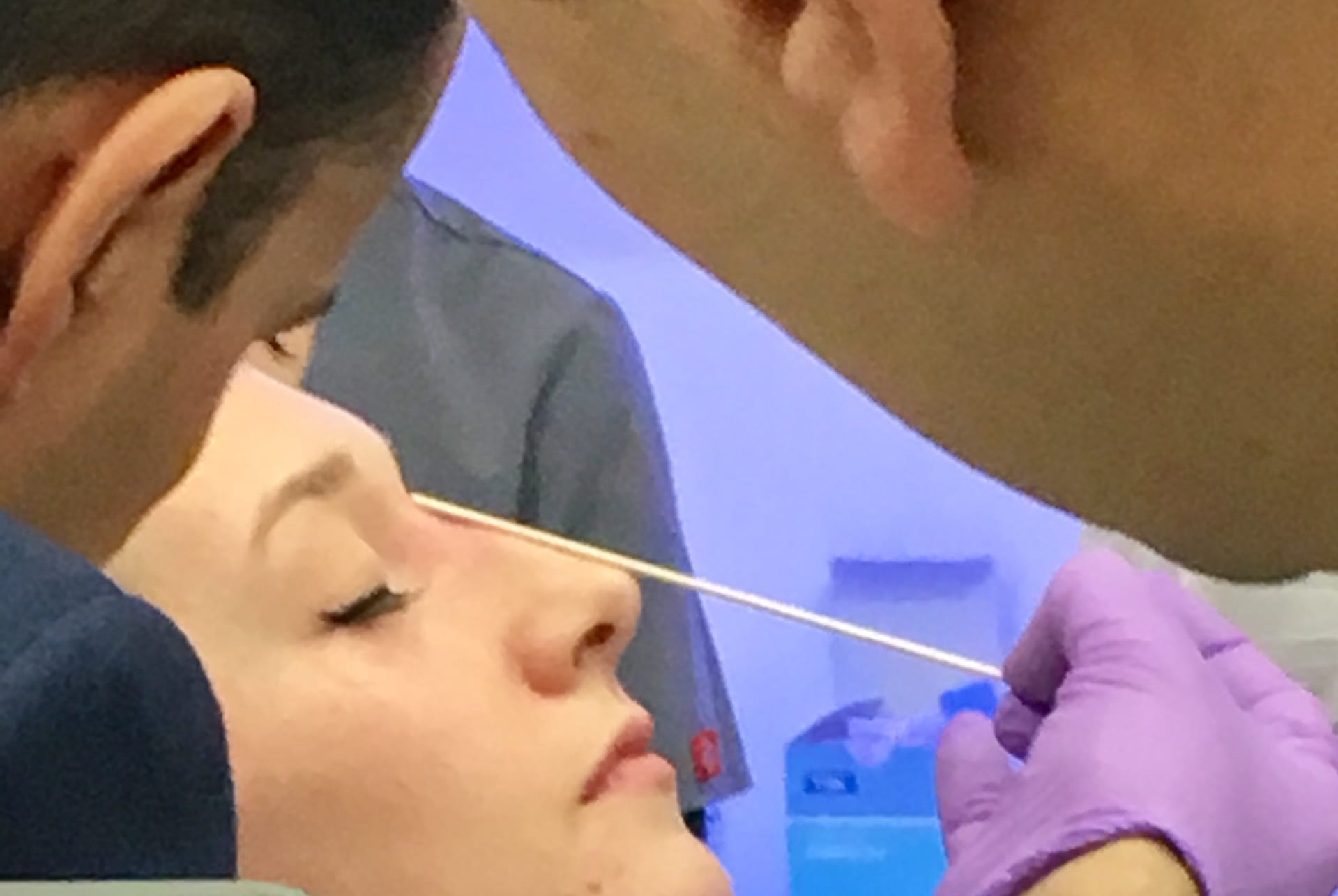 Raised Dorsal Hump Non Surgical Nose Job Phi Clinic