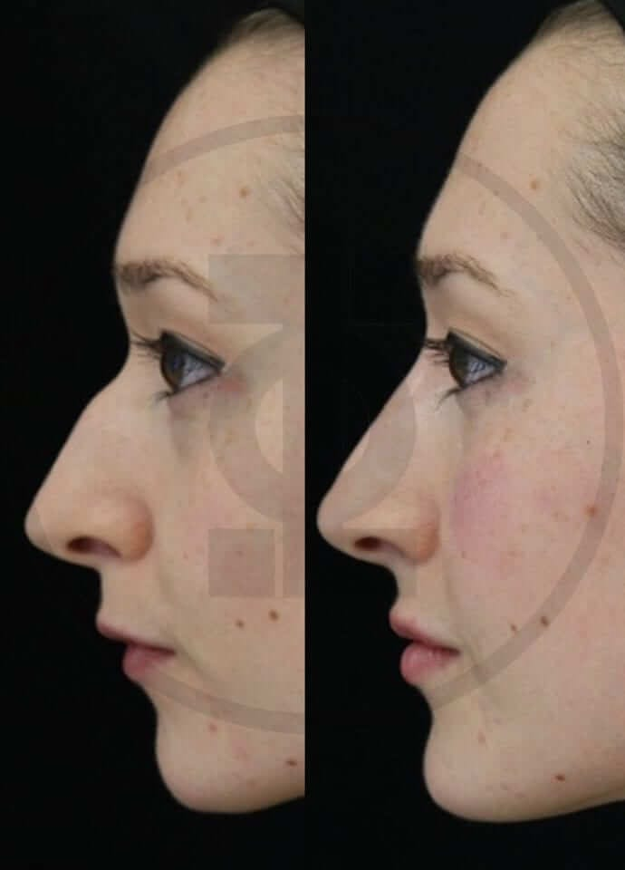 Will a non-surgical nose augmentation give me the results I want?  - nose augmentation result london 690x960 1 690x960