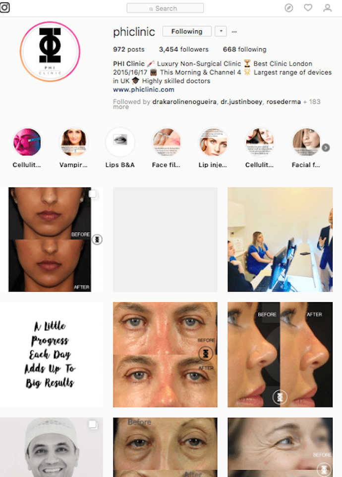 The New Year Facial Reviews - phi clinic instagram 690x960