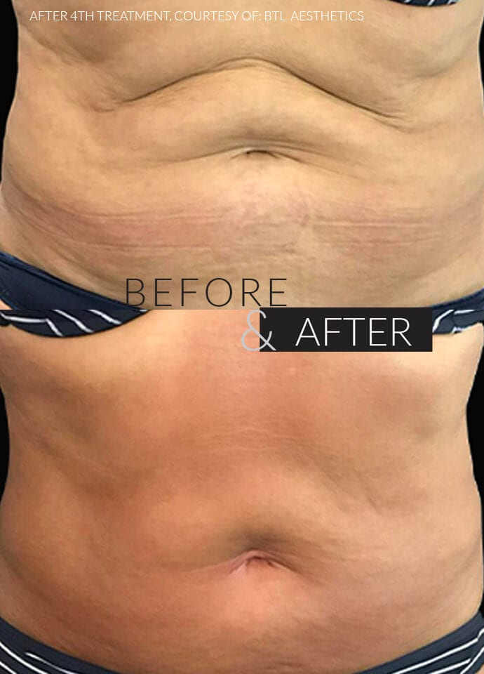 Factors To Consider - saggy skin treatment before after london 690x960 1 690x960
