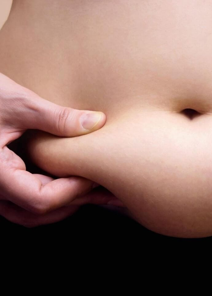 - stomach fat removal london 690x960 1