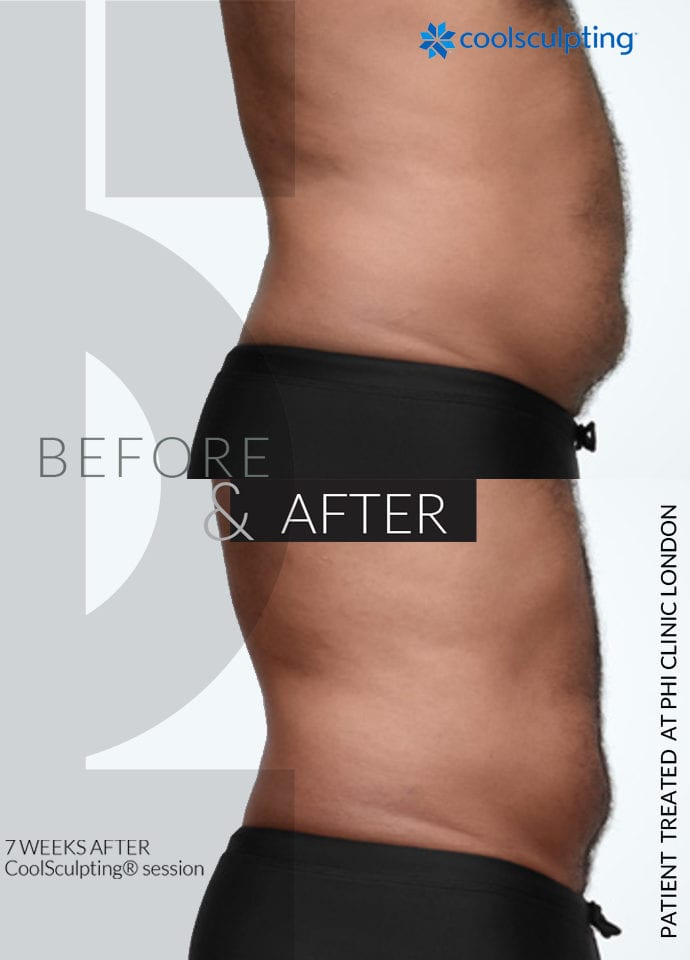 What is the Process? - stomach fat treatment harley street 690x960 1 690x960