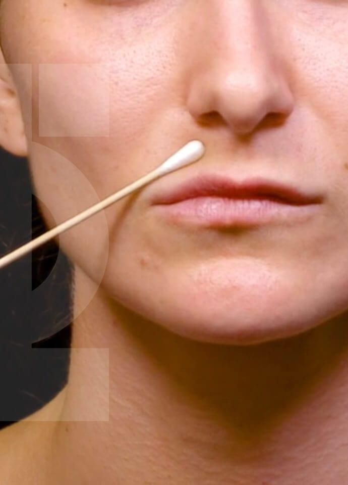 Factors To Consider - thin lips filler injection london 690x960 1 690x960