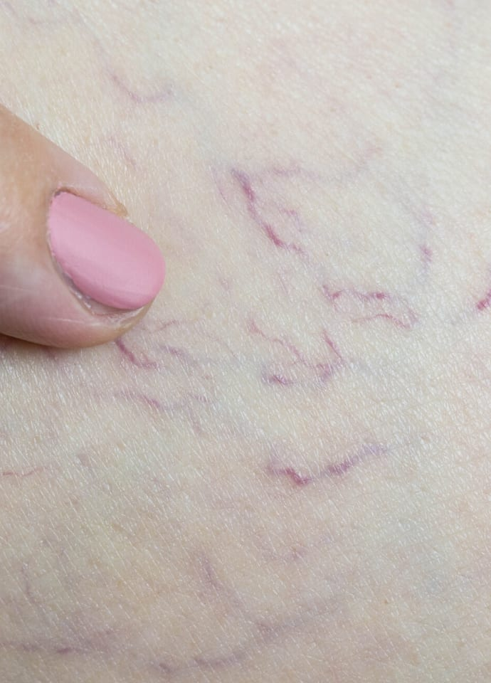 What Causes Facial Thread Veins? - thread veins removal best clinic london 690x960 1