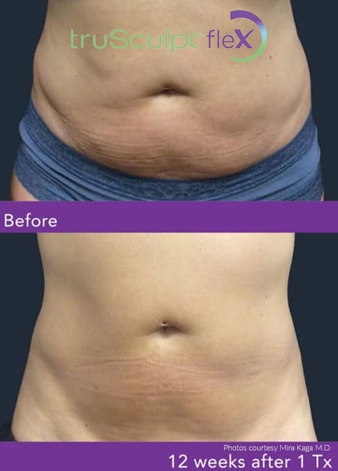 Why Choose Muscle Toning Treatments Over The Gym - trusculpt before after results 690x960 1