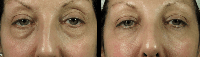 Under Eye Bags Reduction Dermal Filler Phi Clinic London