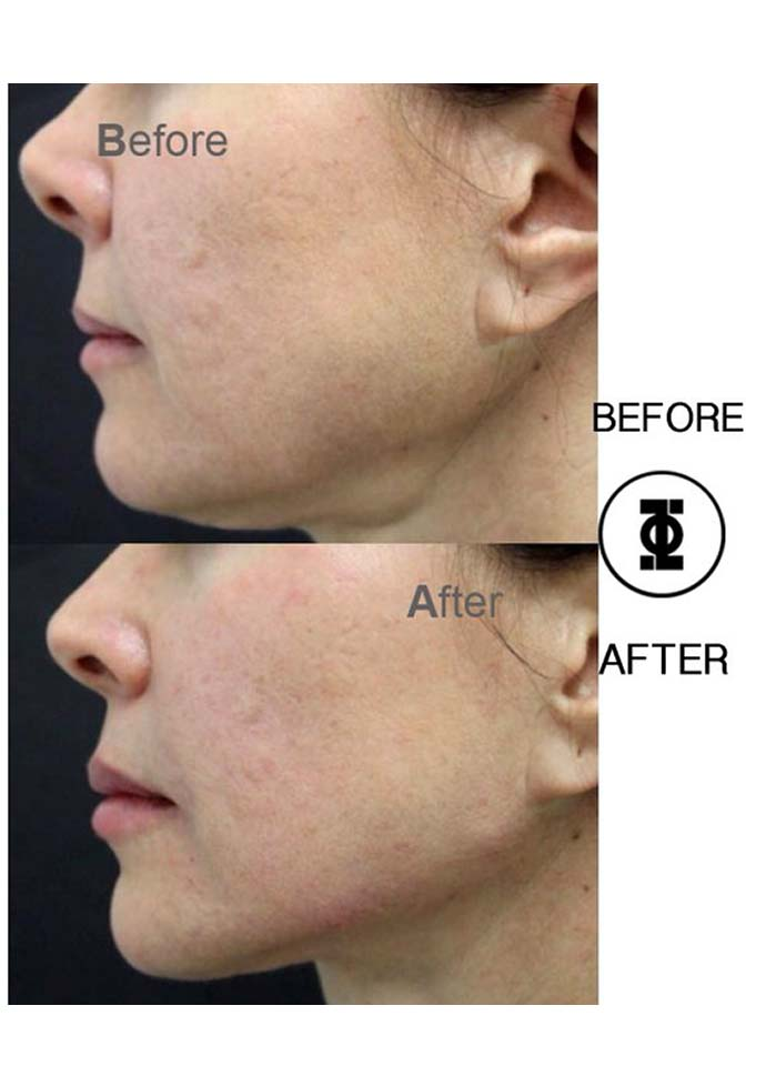 The Masseter/Mandible Causes Wide Jaw - wide jaw treatment phi clinic 690x960