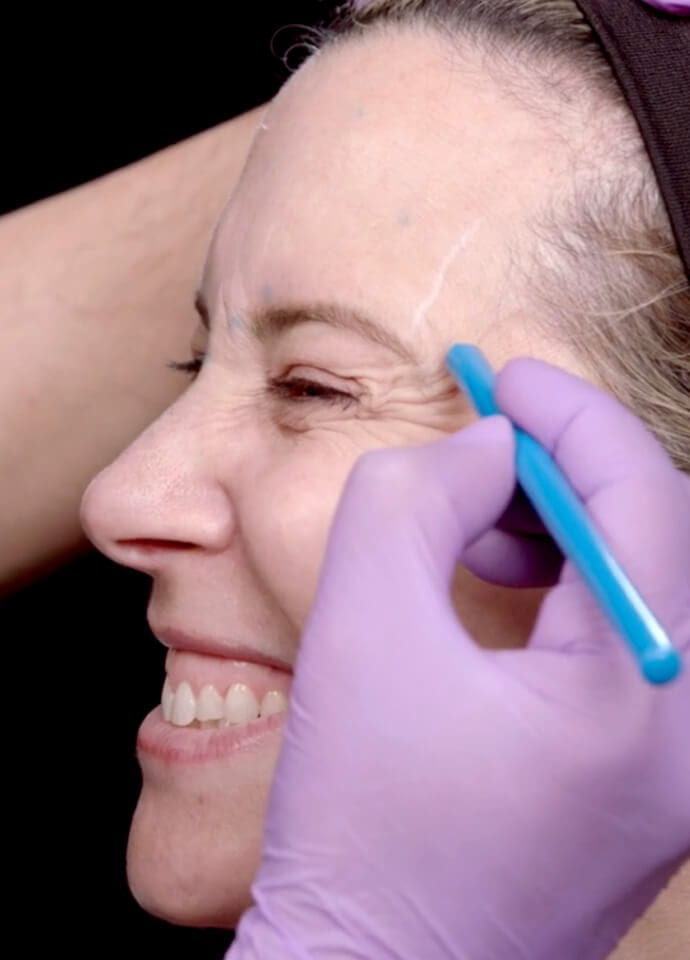 Technical Information - wrinkles on face and eyes botox treatment 690x960 1 690x960